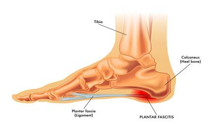 Plantar fasciitis Pain in Torrance