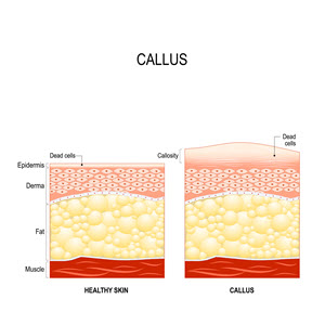 What is a Callus on the Foot
